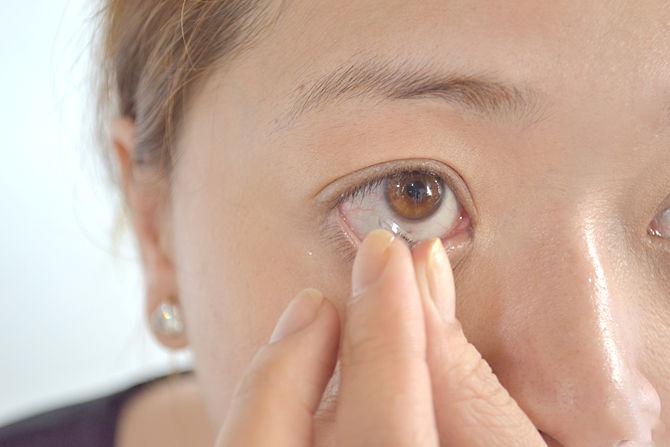 skidanje kontaktnu leću